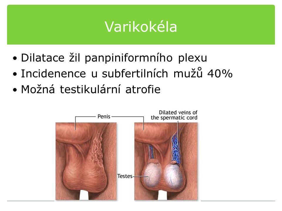 Varikokéla Dilatace žil panpiniformního plexu