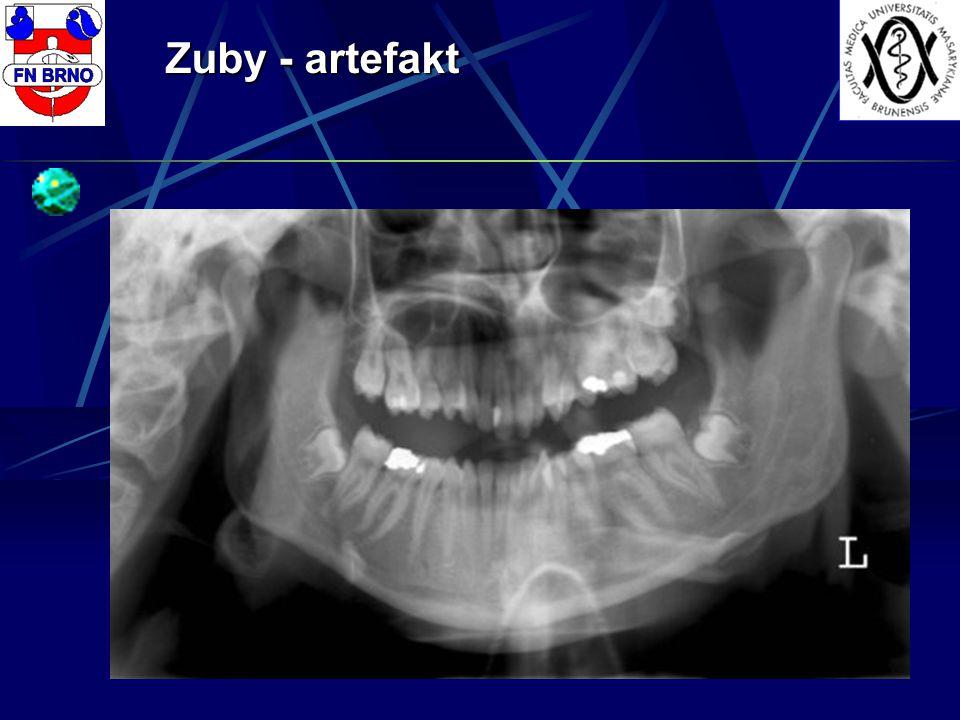Zuby - artefakt