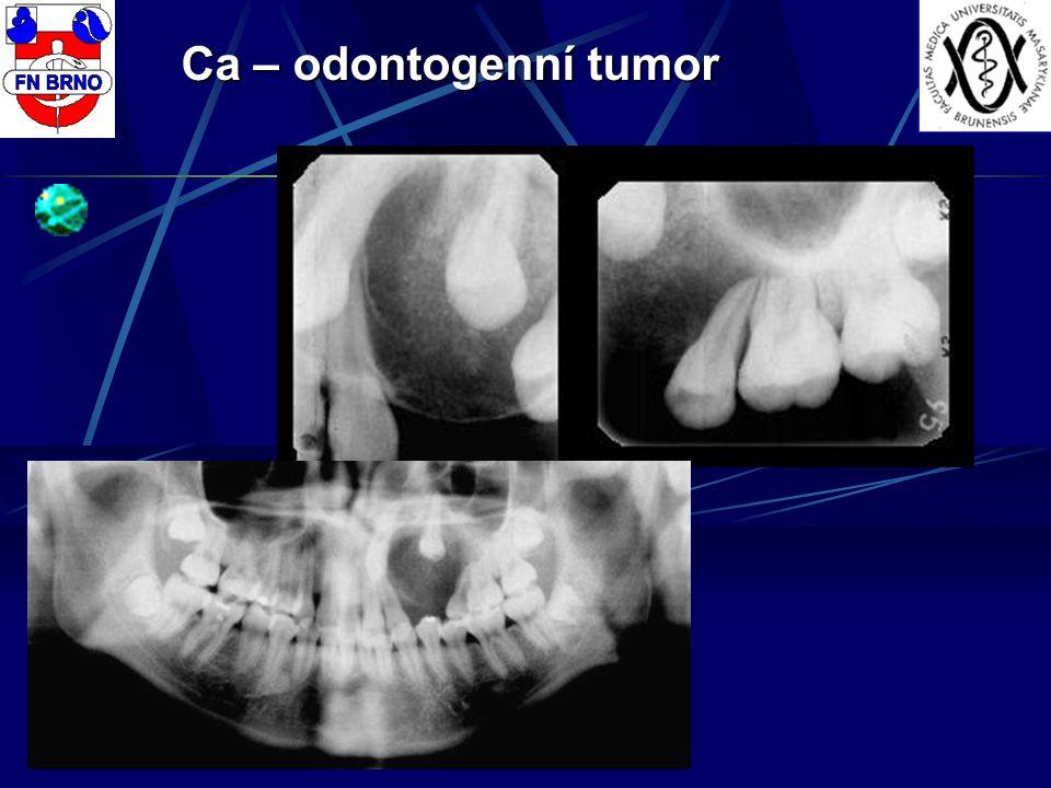 Ca – odontogenní tumor
