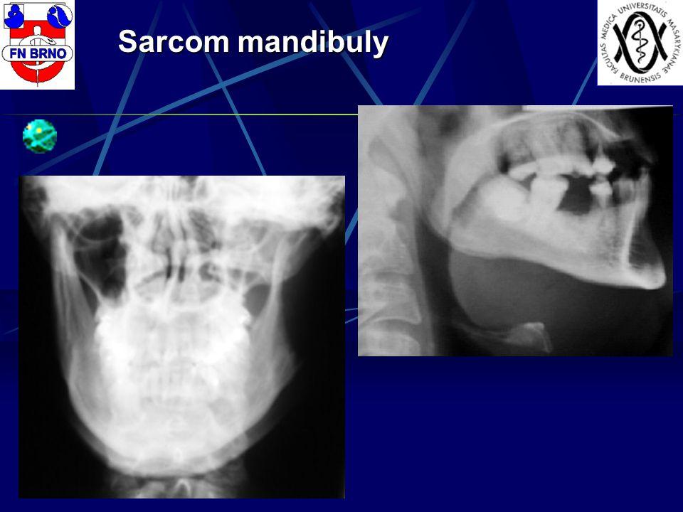 Sarcom mandibuly