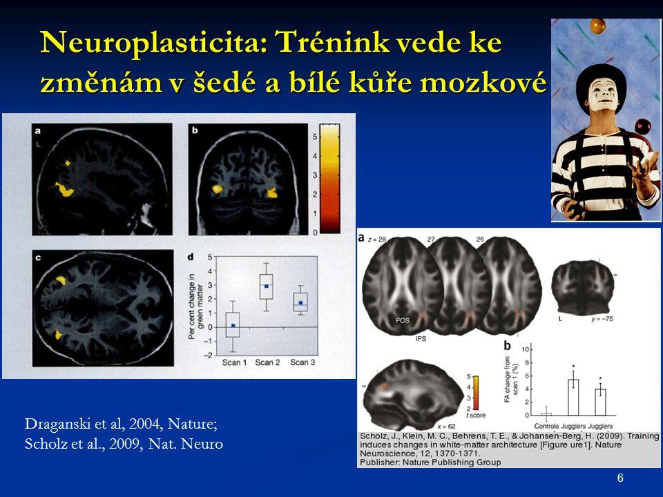 Neuroplasticita: Trénink vede ke změnám v šedé a bílé kůře mozkové