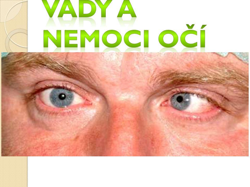 Vady a nemoci očí