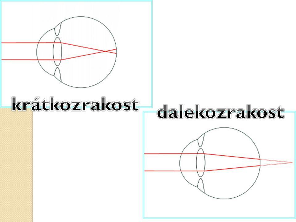 krátkozrakost dalekozrakost