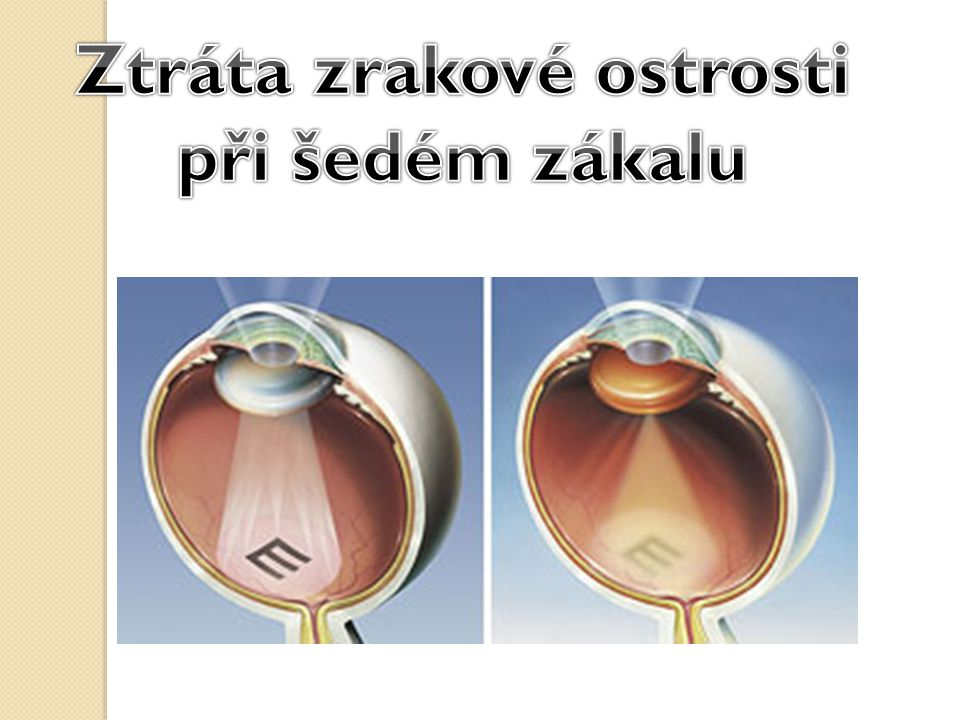 Ztráta zrakové ostrosti