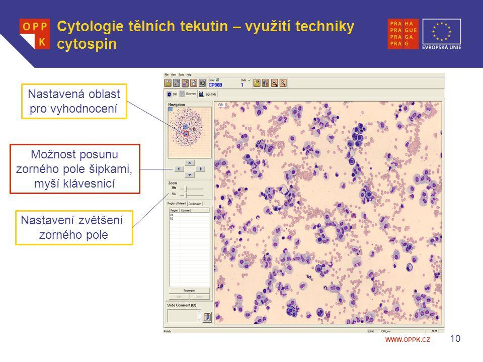 Cytologie tělních tekutin – využití techniky cytospin