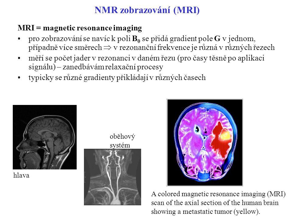 NMR zobrazování (MRI) MRI = magnetic resonance imaging