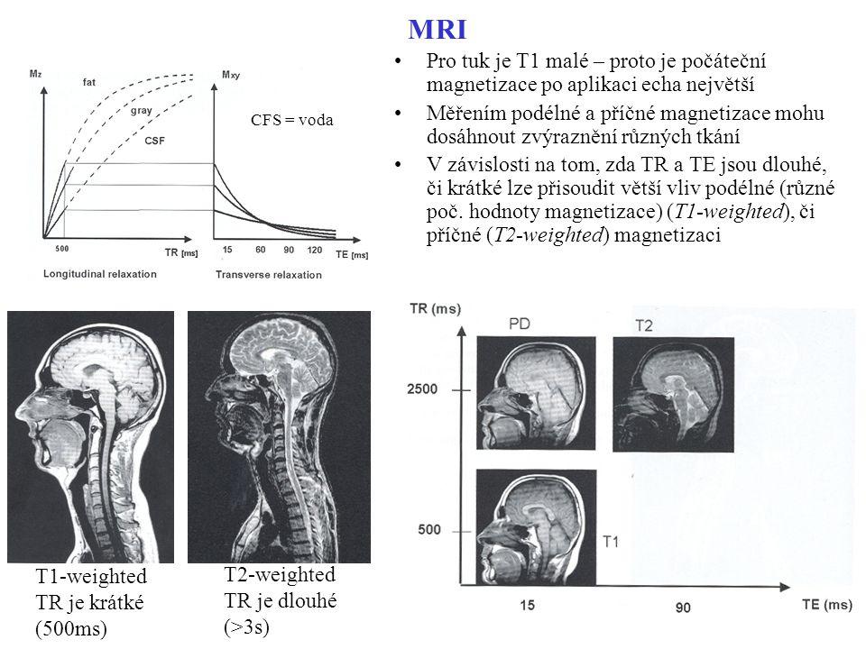 MRI Pro tuk je T1 malé – proto je počáteční magnetizace po aplikaci echa největší.