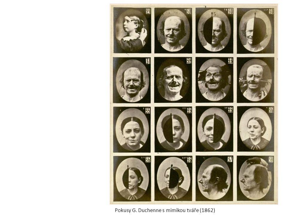 Pokusy G. Duchenne s mimikou tváře (1862)