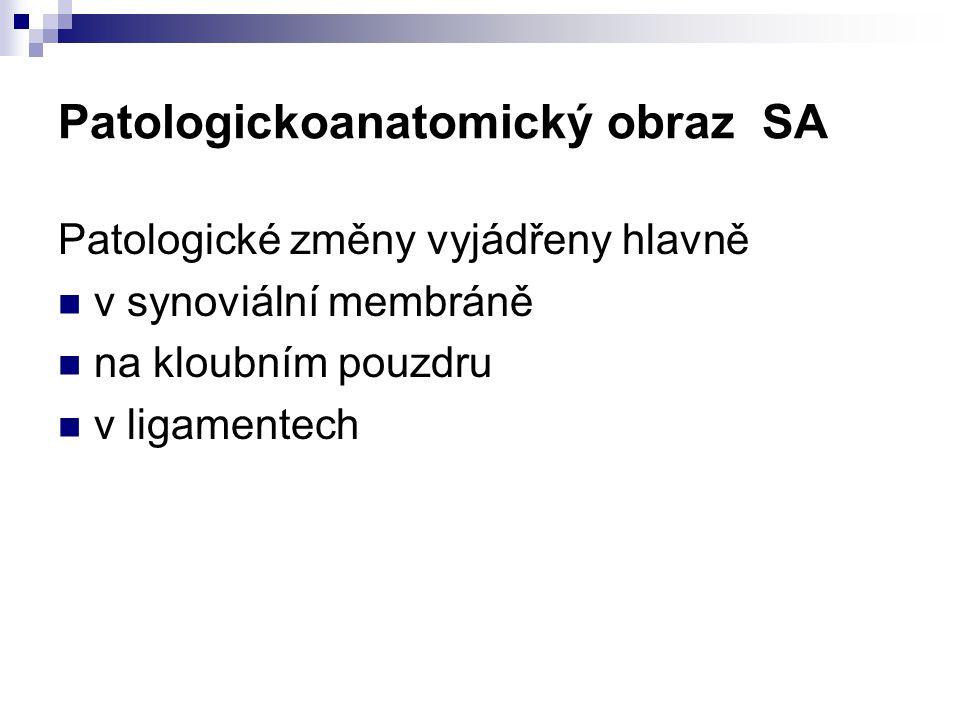 Patologickoanatomický obraz SA