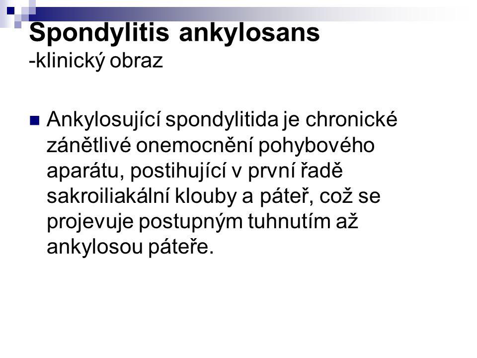 Spondylitis ankylosans -klinický obraz
