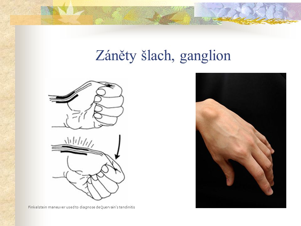 Záněty šlach, ganglion Finkelstein maneuver used to diagnose deQuervain s tendinitis