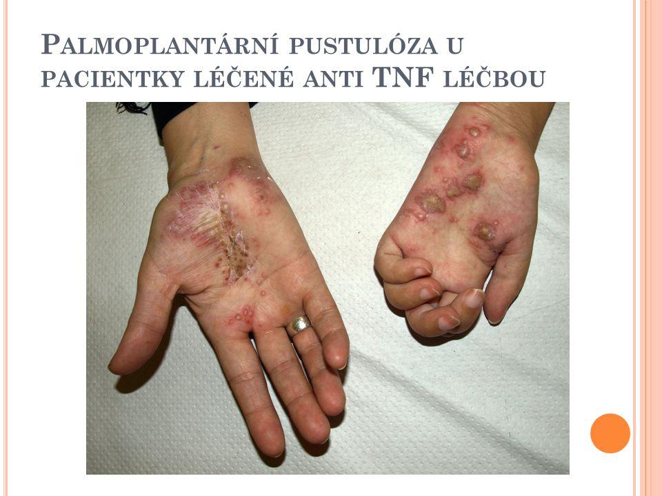 Palmoplantární pustulóza u pacientky léčené anti TNF léčbou