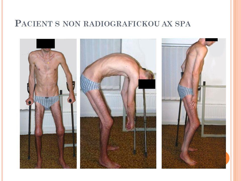 Pacient s non radiografickou ax spa