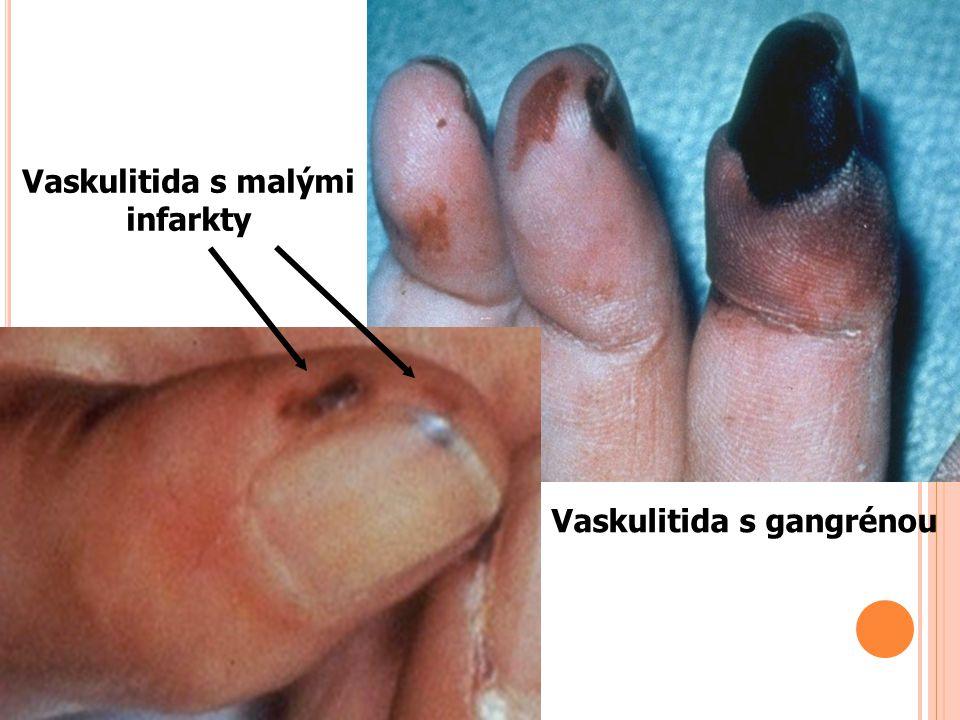 Vaskulitida s malými infarkty