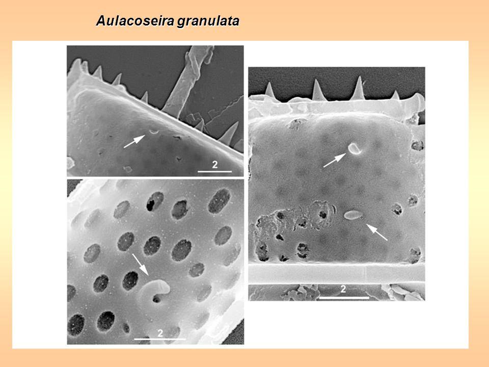 Aulacoseira granulata