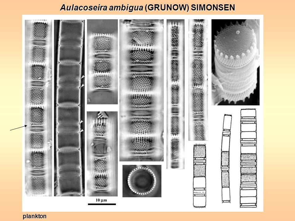 Aulacoseira ambigua (GRUNOW) SIMONSEN