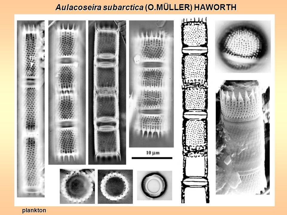 Aulacoseira subarctica (O.MÜLLER) HAWORTH