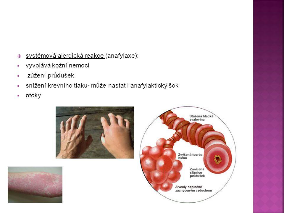 systémová alergická reakce (anafylaxe):