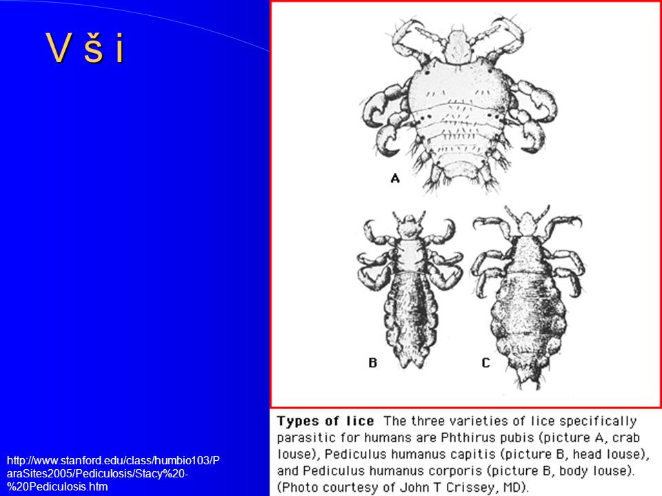 V š i http://www.stanford.edu/class/humbio103/ParaSites2005/Pediculosis/Stacy%20-%20Pediculosis.htm
