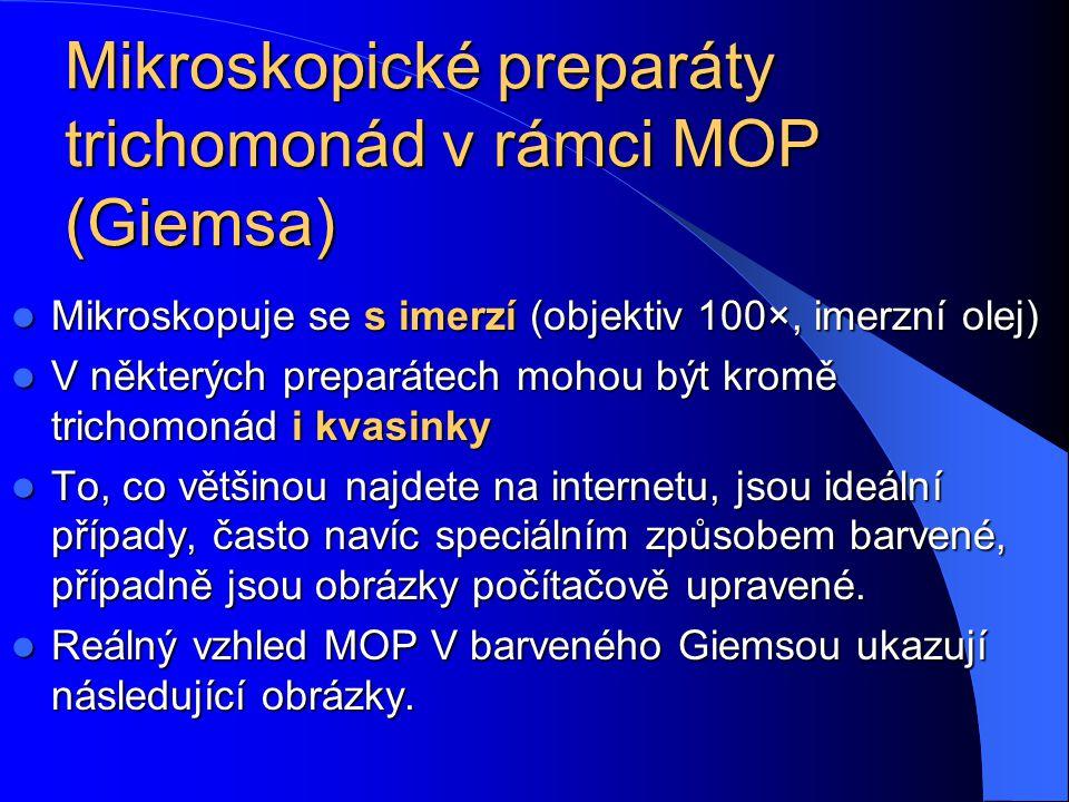 Mikroskopické preparáty trichomonád v rámci MOP (Giemsa)