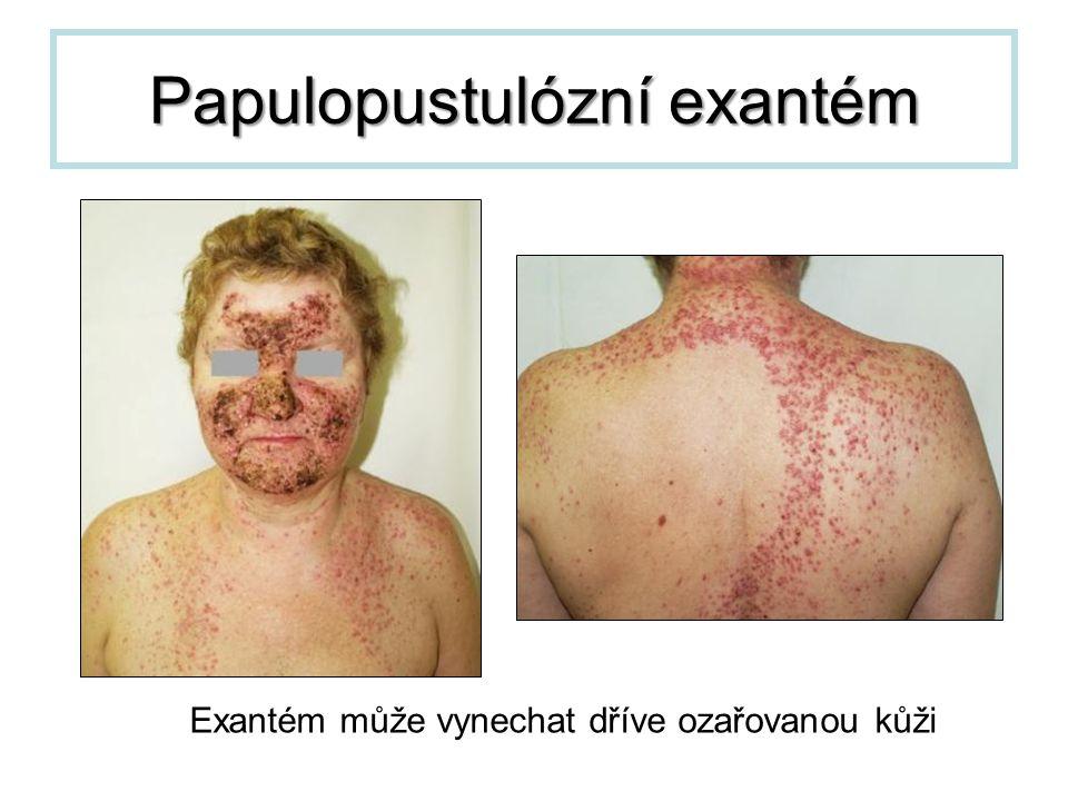 Papulopustulózní exantém