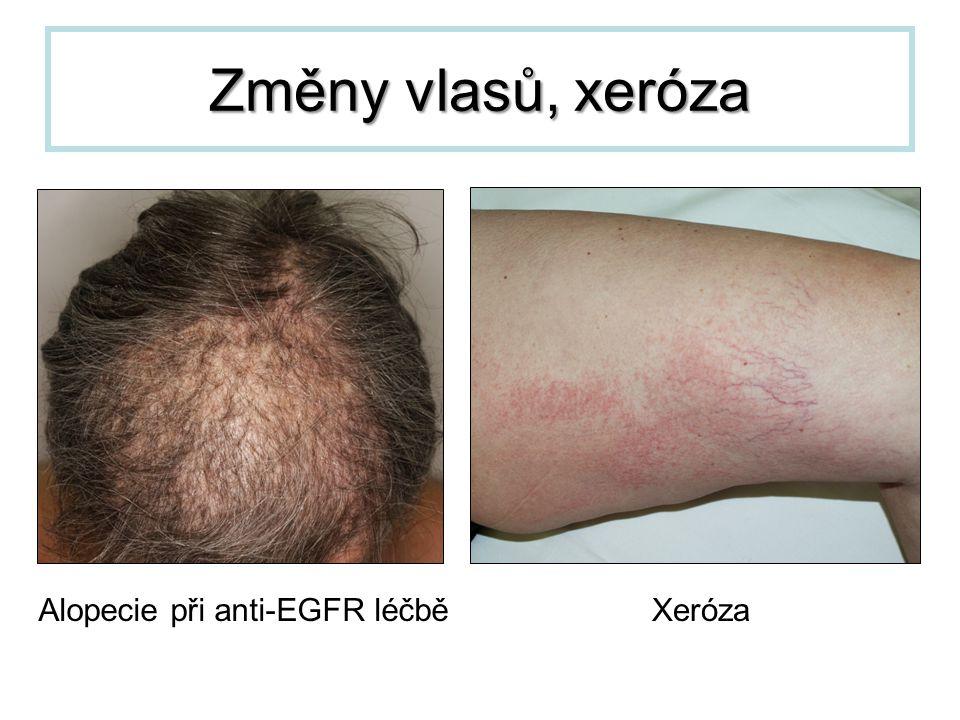 Alopecie při anti-EGFR léčbě