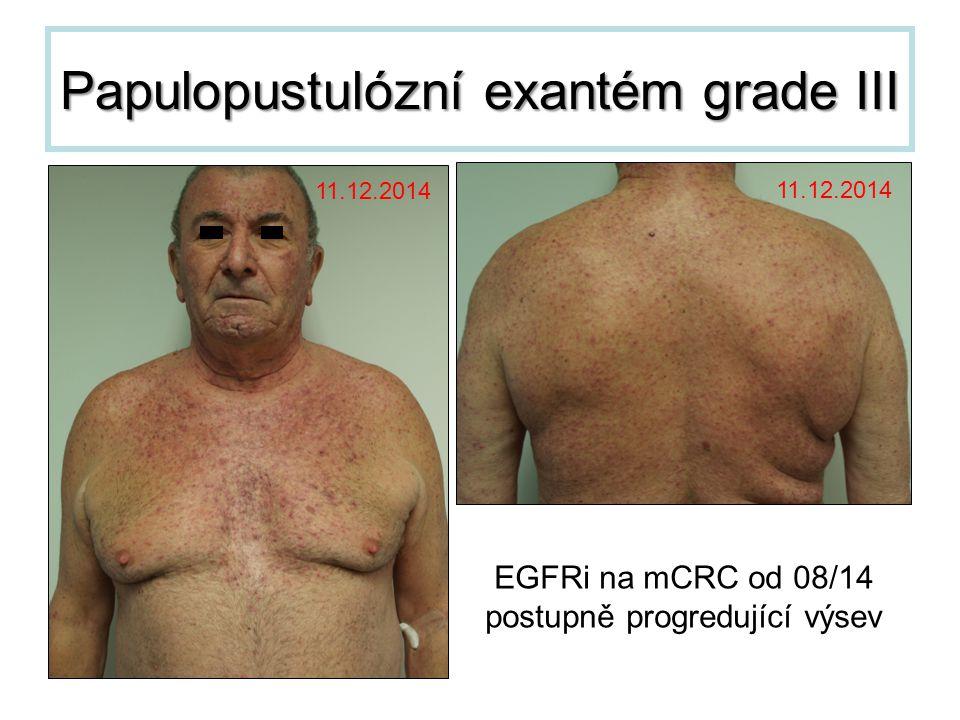 Papulopustulózní exantém grade III