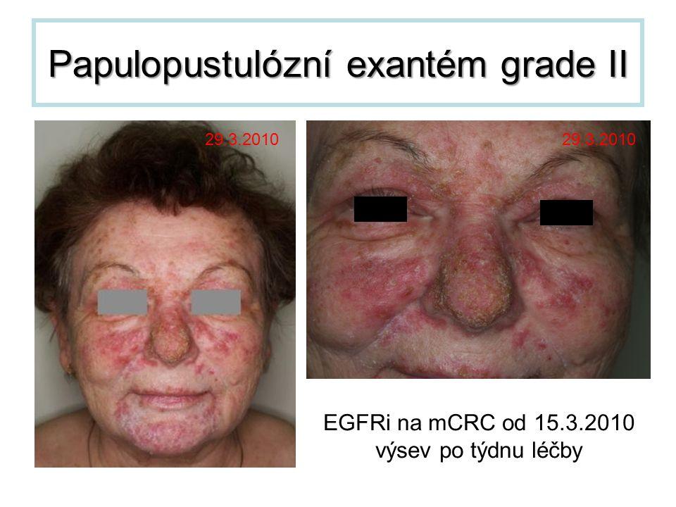 Papulopustulózní exantém grade II