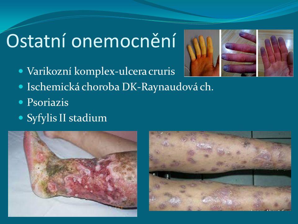 Ostatní onemocnění Varikozní komplex-ulcera cruris
