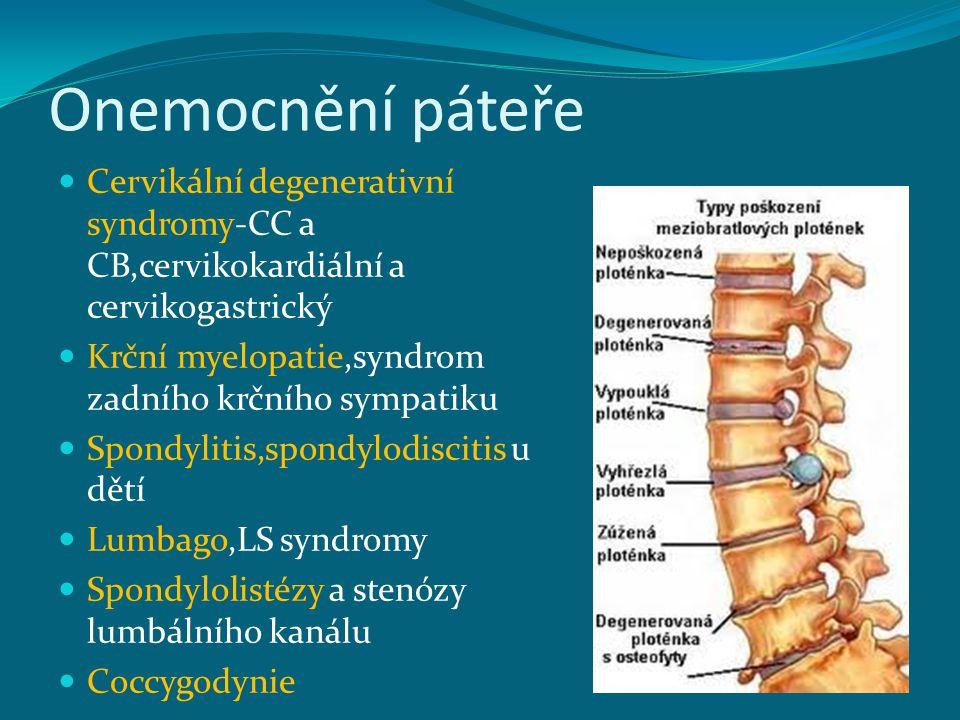 Onemocnění páteře Cervikální degenerativní syndromy-CC a CB,cervikokardiální a cervikogastrický. Krční myelopatie,syndrom zadního krčního sympatiku.