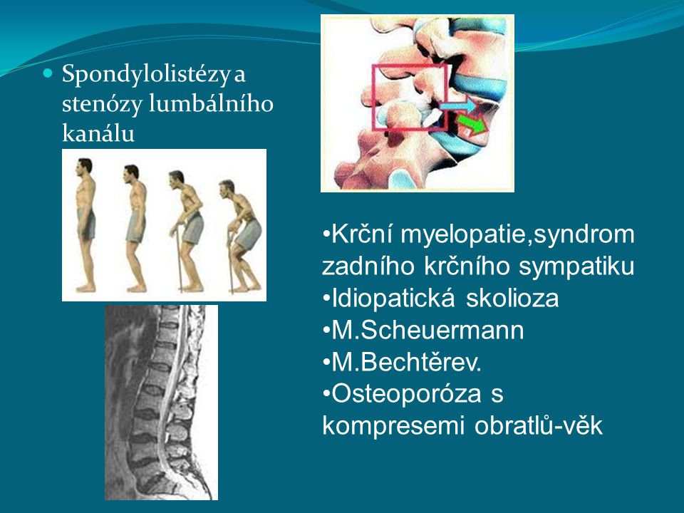 Krční myelopatie,syndrom zadního krčního sympatiku