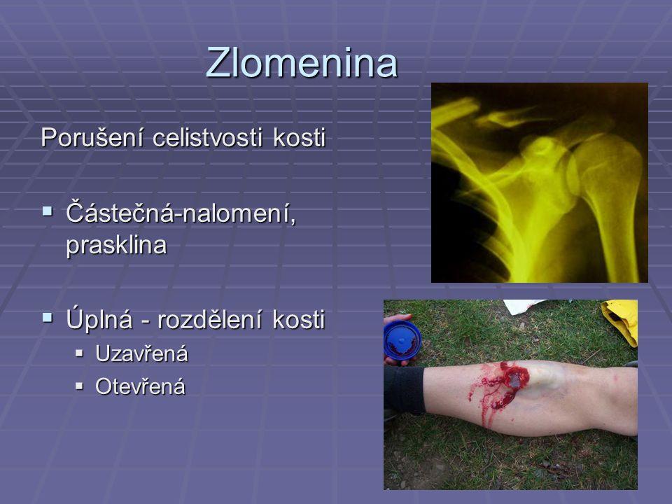 Zlomenina Porušení celistvosti kosti Částečná-nalomení, prasklina