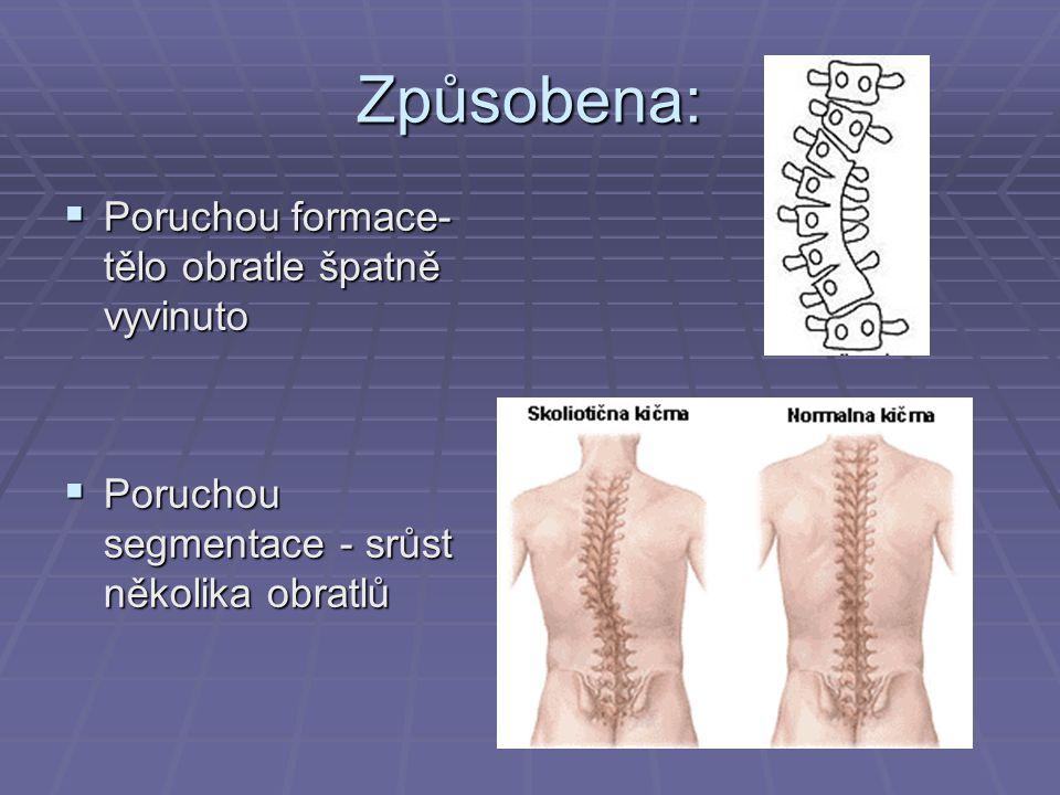 Způsobena: Poruchou formace-tělo obratle špatně vyvinuto