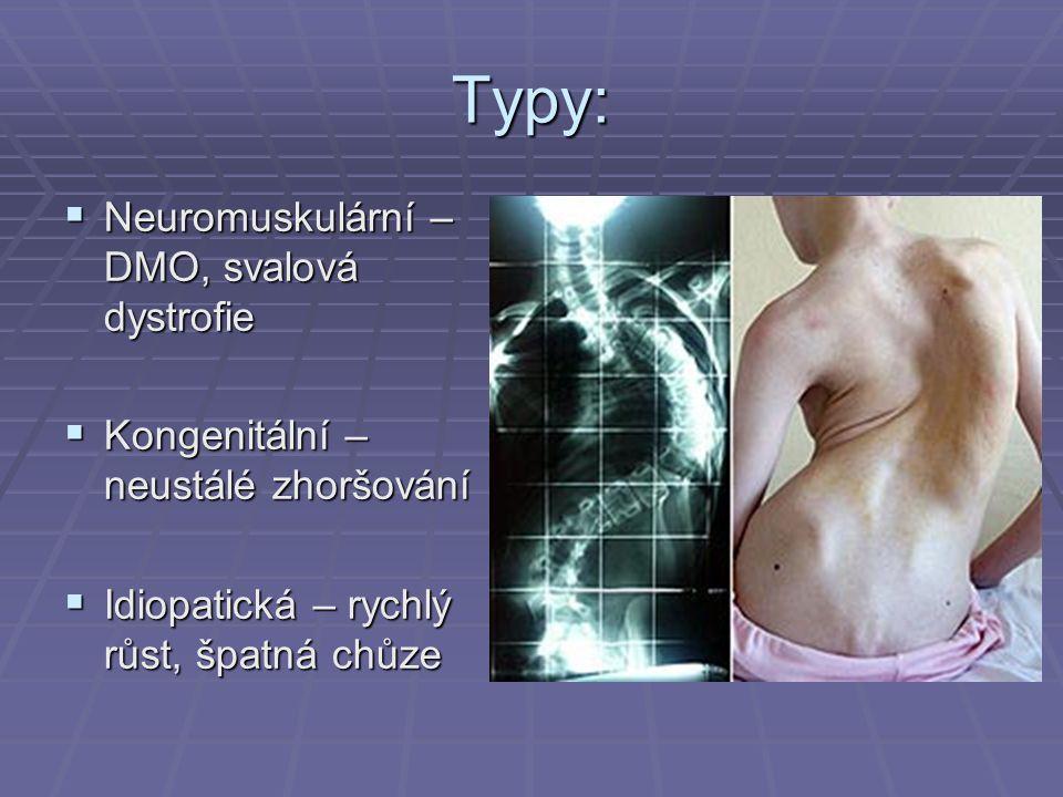 Typy: Neuromuskulární – DMO, svalová dystrofie
