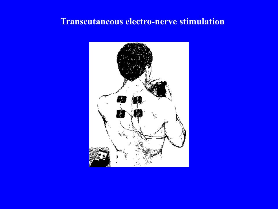 Transcutaneous electro-nerve stimulation