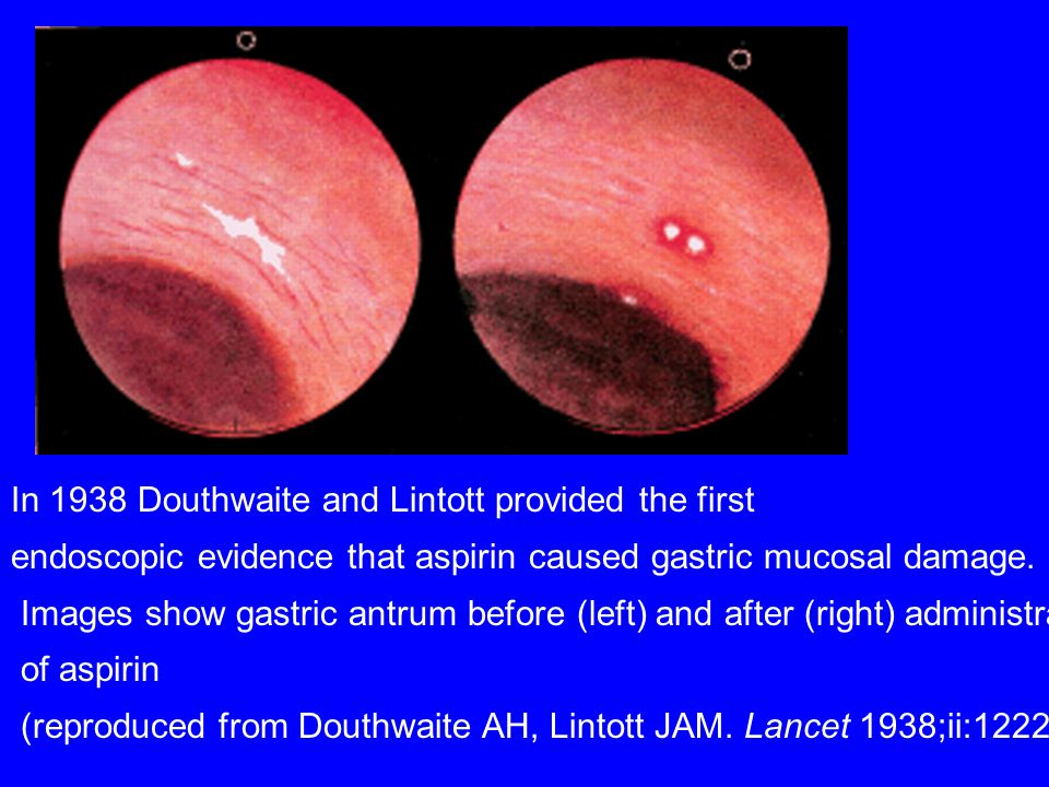 In 1938 Douthwaite and Lintott provided the first