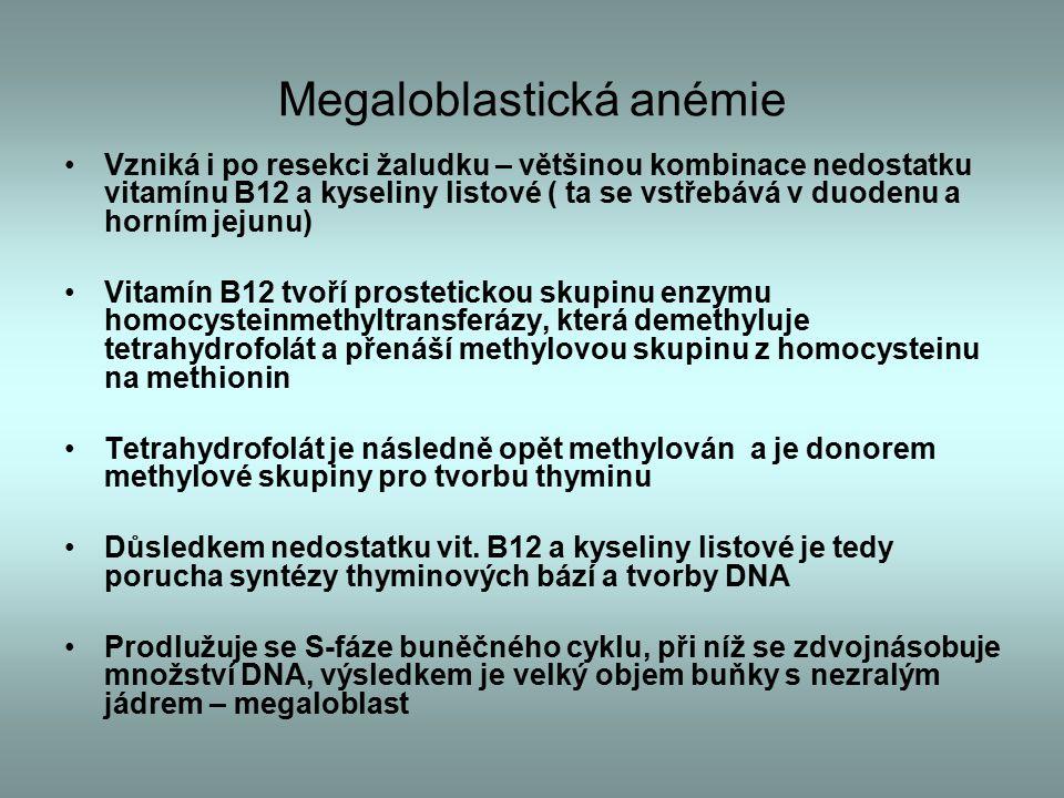 Megaloblastická anémie
