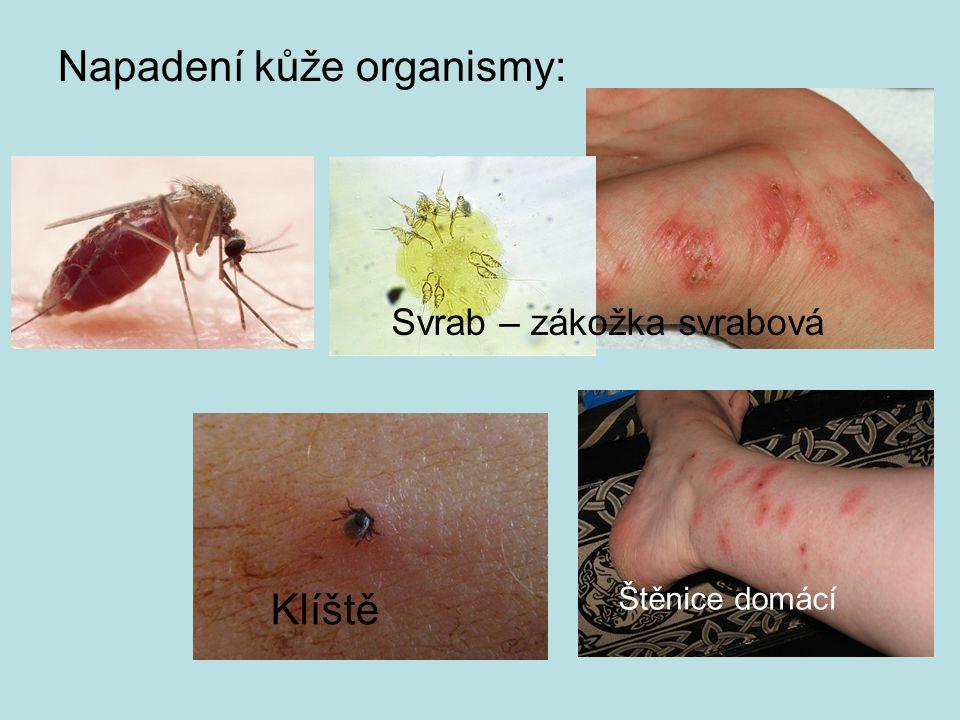 Napadení kůže organismy: