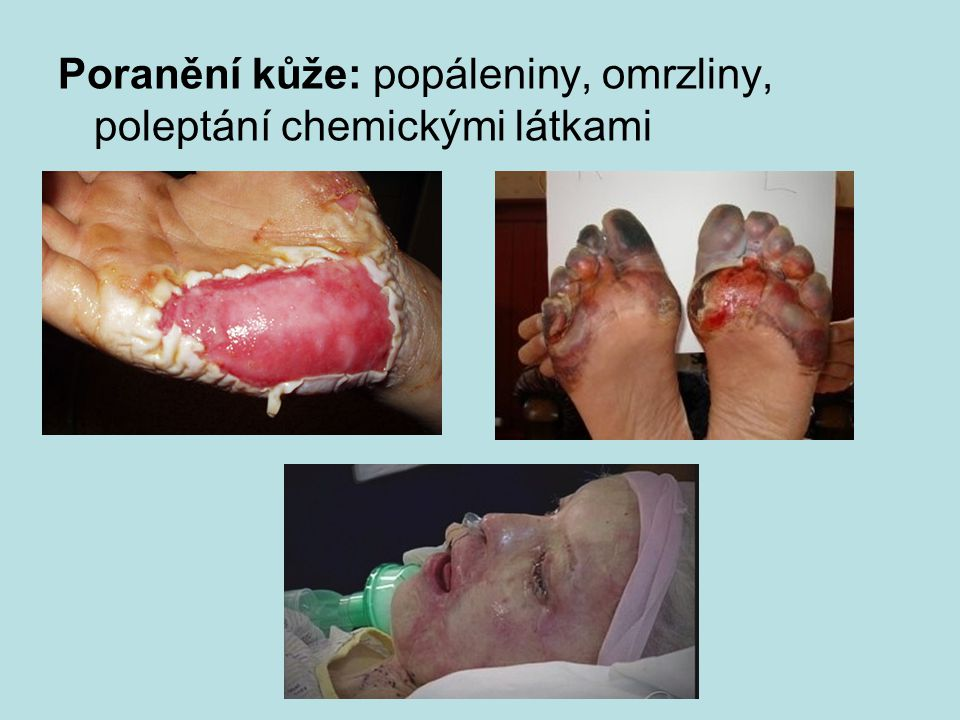 Poranění kůže: popáleniny, omrzliny, poleptání chemickými látkami