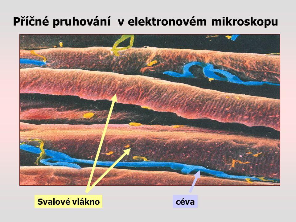 Příčné pruhování v elektronovém mikroskopu