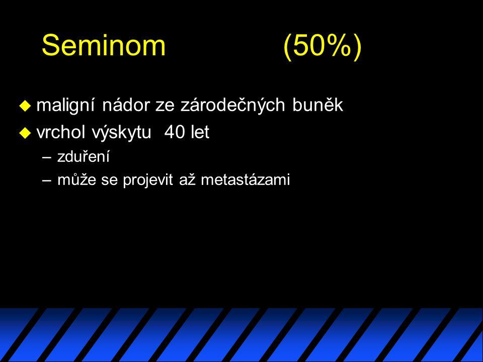 Seminom (50%) maligní nádor ze zárodečných buněk vrchol výskytu 40 let