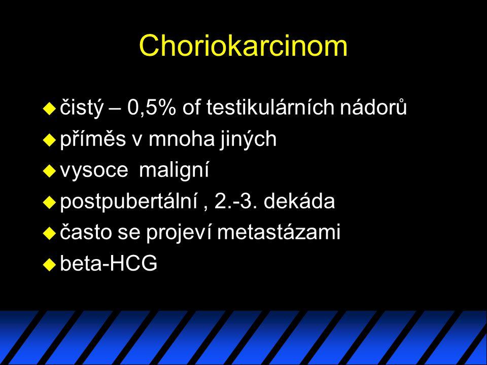 Choriokarcinom čistý – 0,5% of testikulárních nádorů