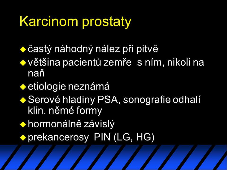 Karcinom prostaty častý náhodný nález při pitvě