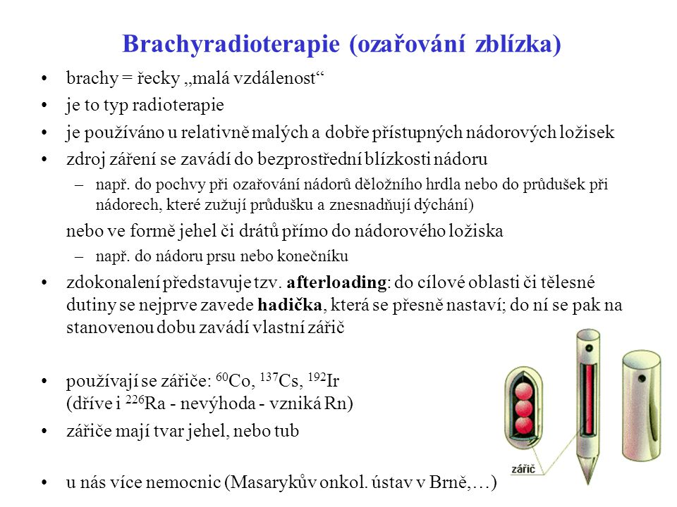 Brachyradioterapie (ozařování zblízka)