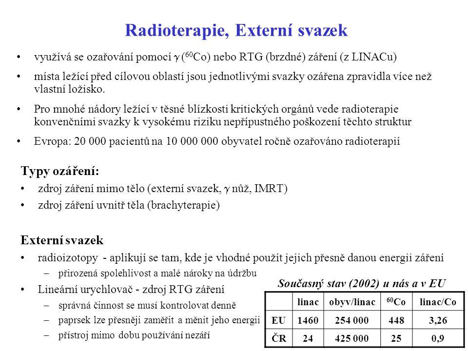 Radioterapie, Externí svazek