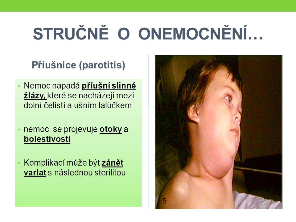 Příušnice (parotitis)