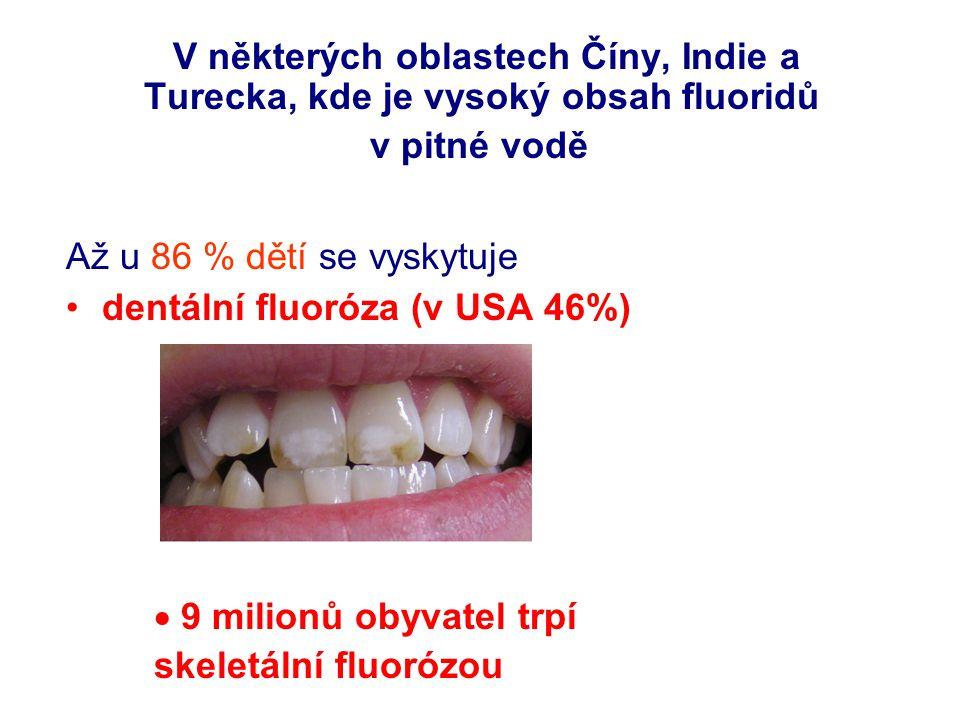 dentální fluoróza (v USA 46%)