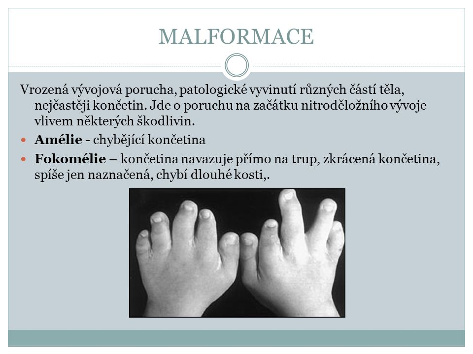 MALFORMACE