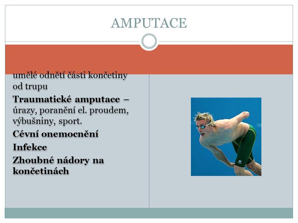 AMPUTACE umělé odnětí části končetiny od trupu