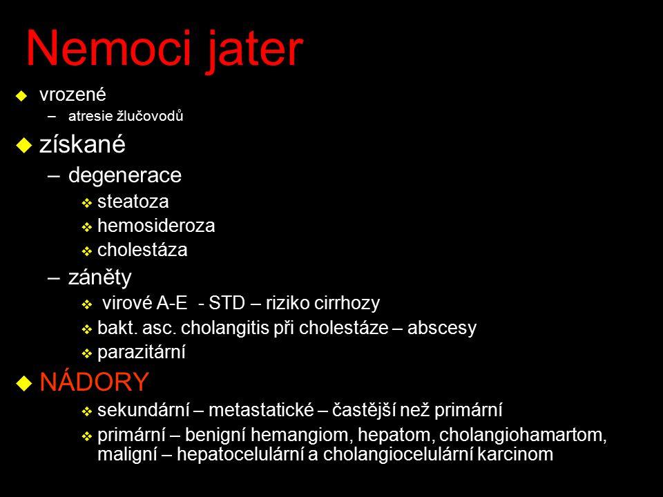 Nemoci jater získané NÁDORY degenerace záněty vrozené steatoza